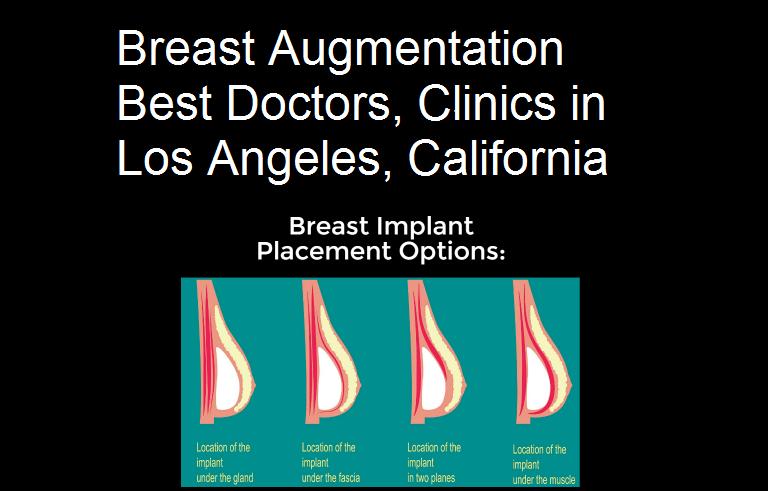 Breast Enhancement Doctors Clinics in Los Angeles California